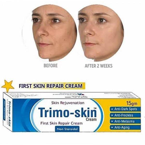 trimo skin acne cream review